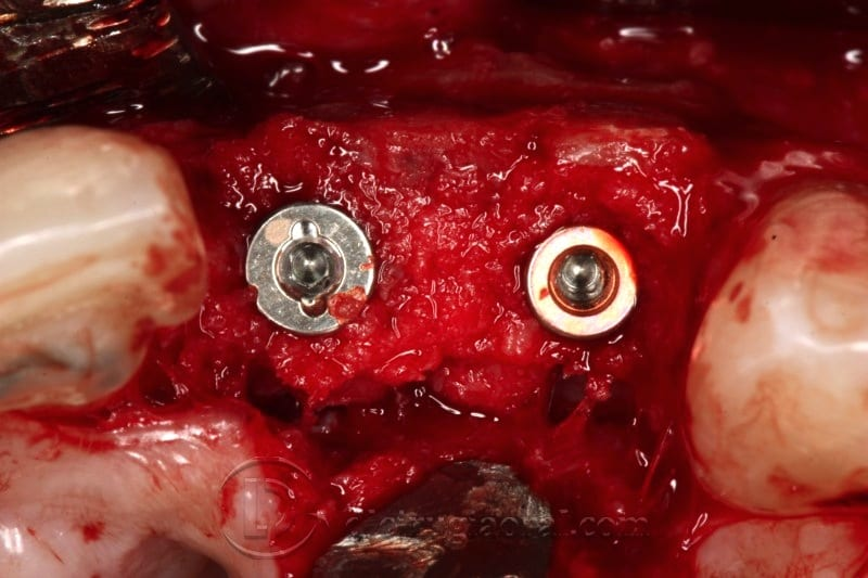 Implant surgery on reconstruction on front part