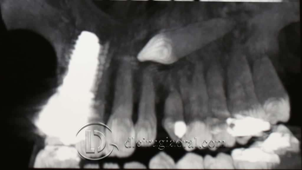 Impacted canine: extraction + implant + graft